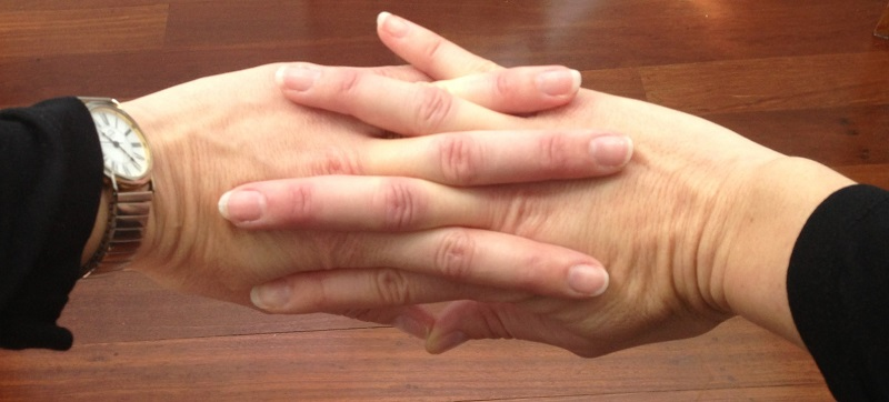 #6. Cracking your knuckles won't cause you arthritis