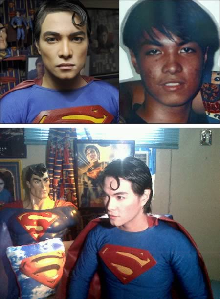 16 surgeries for original Superman look