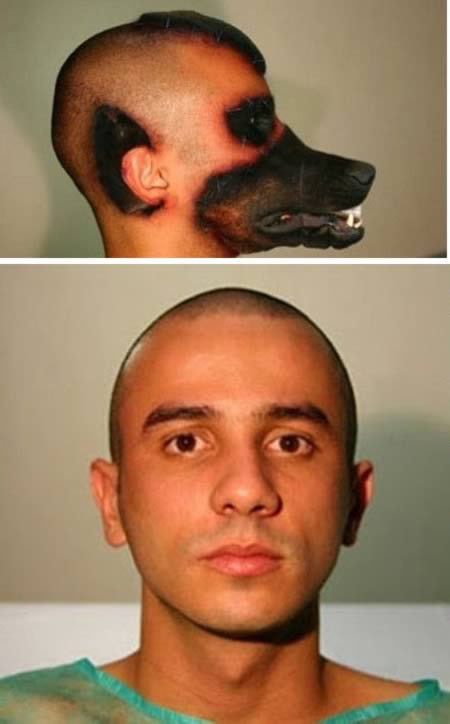 Men gets plastic surgery to look like a dog