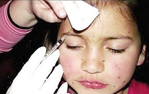 Mother gave Botox to her eight-year-old daughter to make her prettier for a beauty pageant