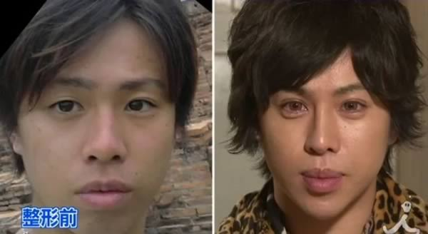 Japanese man spent $150,000 on plastic surgery to look like Michelangelo's David