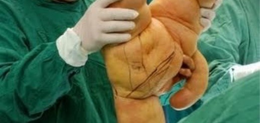 You Wouldn't Believe That This Happened During Surgeries