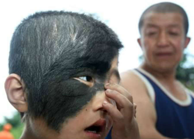 Eight Year  Old Chinese Boy Receives Free Eye Surgery to Remove Hairy Birthmark