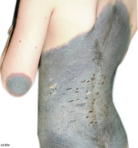 Six Year Old Girl Develops Cow Hide Skin Condition