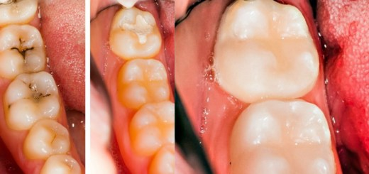 10 Simple And Natural Ways To Reverse Cavities And Heal Tooth Decay