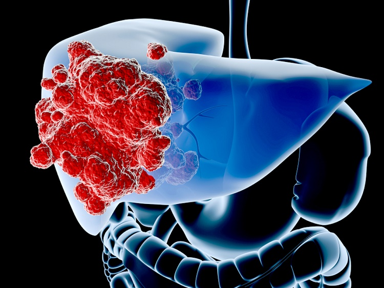Regular drinking coffee may decrease the risk of liver cance