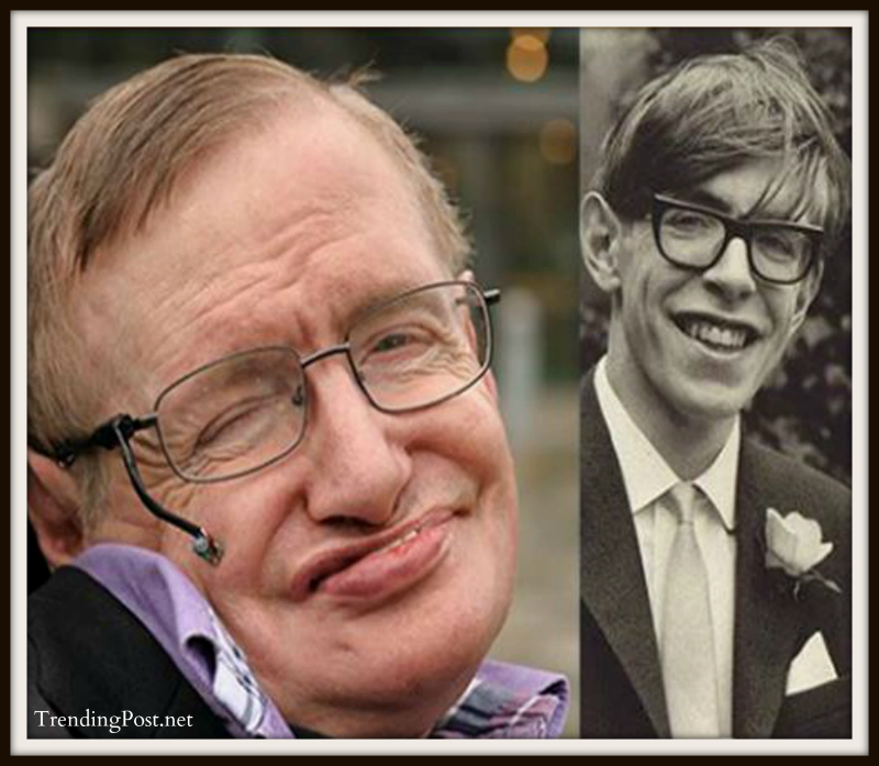 Stephen Hawking is 73 years old now and has outlived his life expectancy due to ALS by over 50 years
