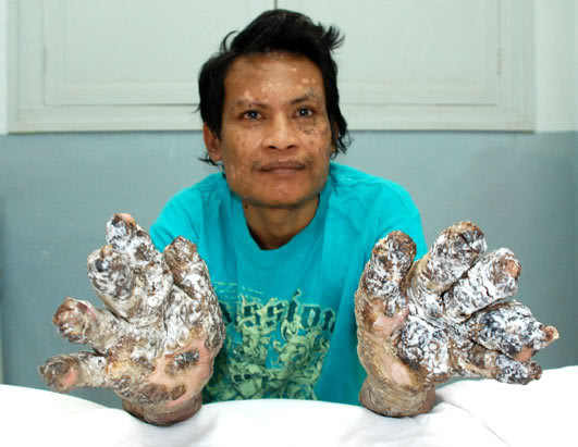 It is one of the rarest diseases on Earth