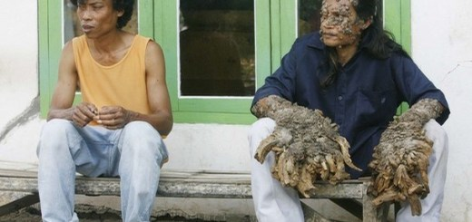 The shocking facts about tree man syndrome