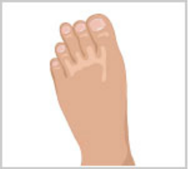 A regular foot with a third toe that forms an angle
