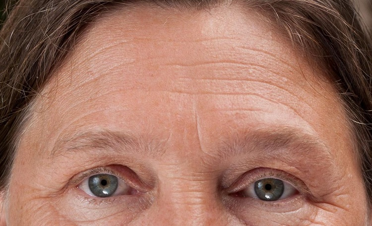 Face mapping and skin conditions