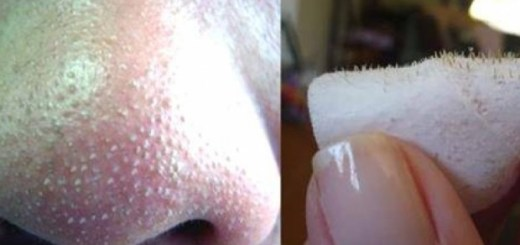 5 natural ways to get rid of blackheads at home