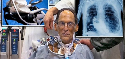 55 year old man literally lived heartless. Find out how