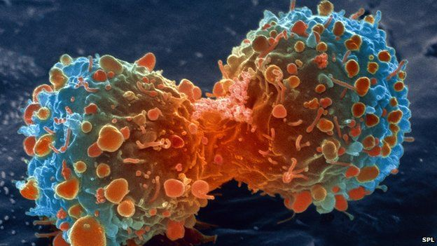 Cancer cells and sugar