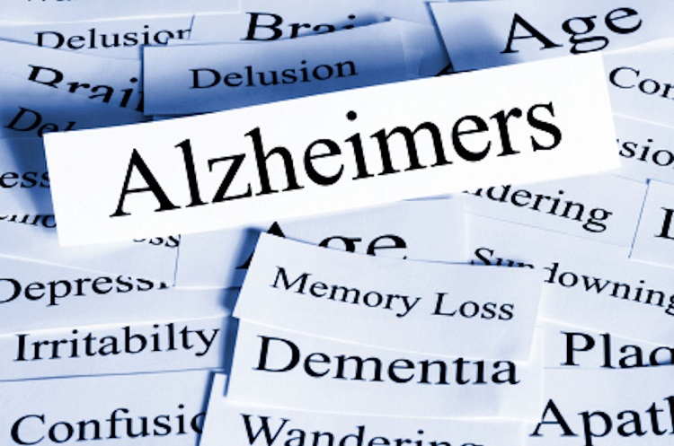 Alzheimer's and Dementia Related ailments