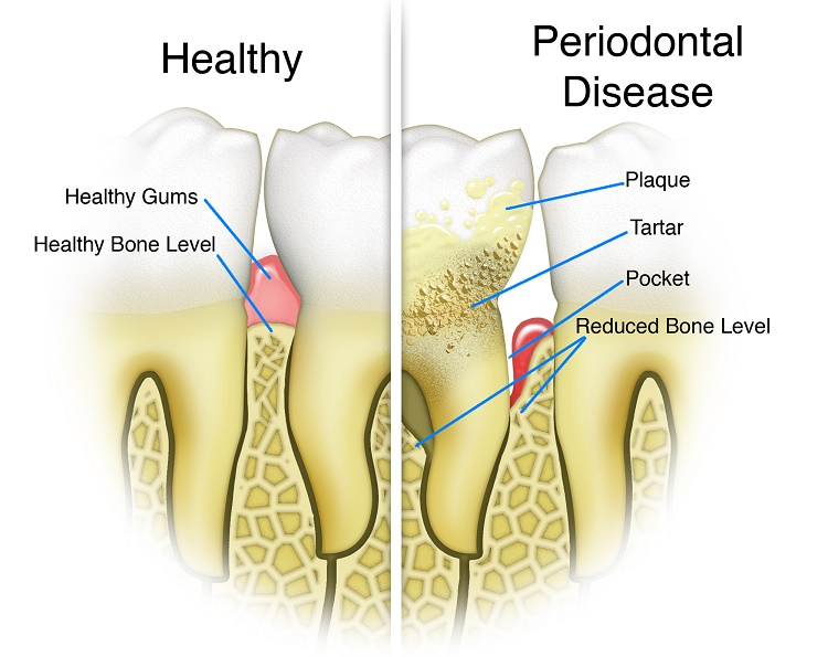 Wisdom Teeth and Periodontal Diseases