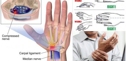5 Ways you can ease the terrible pain of Carpal tunnel syndrome