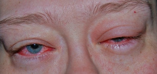 9 Simple and effective natural remedies for sore eyes