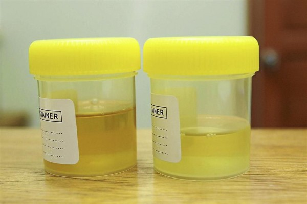 Change in urine color