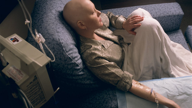Chemo has more side effects than hair loss