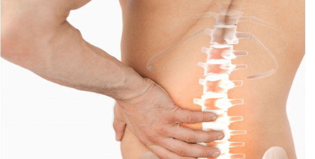 Everything that you need to know abouta proper Slipped Disc treatment plan