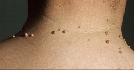 How to remove skin tags naturally with a host of single ingredients available in your kitchen!