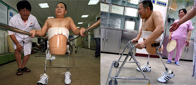 A half split man was able to walk again