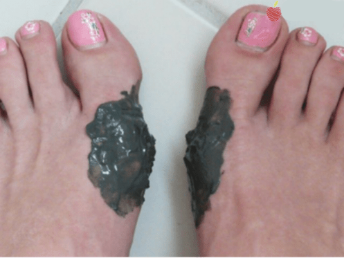 An organic paste to remove bunions
