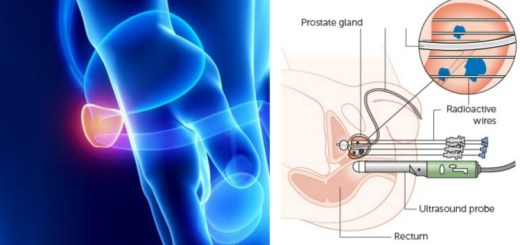 Researchers find a better treatment option for patients of prostate cancer other than radiation