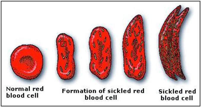 Symptoms of Sickle Cell Disease