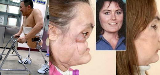 These 10 successful medical surgeries will make you believe in miracles!