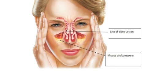 Top effective ways to deal with sinus congestion at home