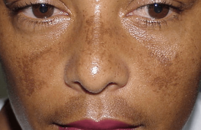 ome Causes of skin pigmentation