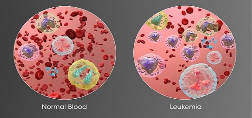 Deficiency of vitamin D can increase the risk of leukemia