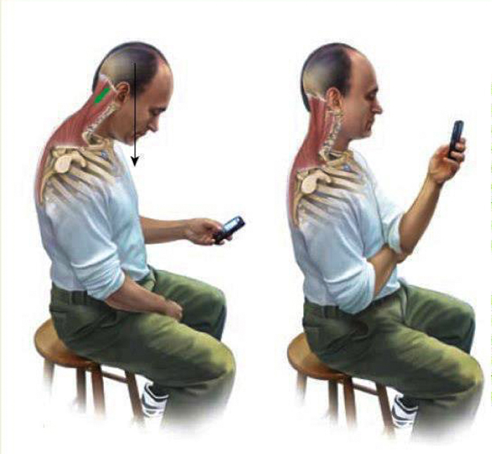Effects of Texting