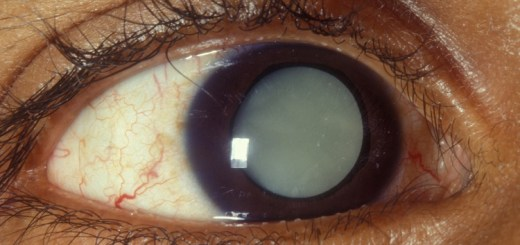 Here is how you can prevent the risk of cataract