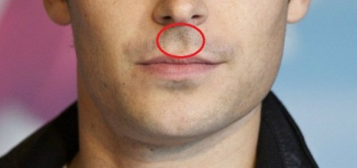 Here's what it means to have a cavity between nose and upper lip