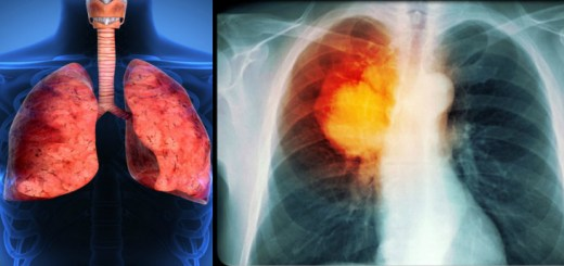 Smokers diagnosed with pneumonia exposed to greater risk of lung cancer