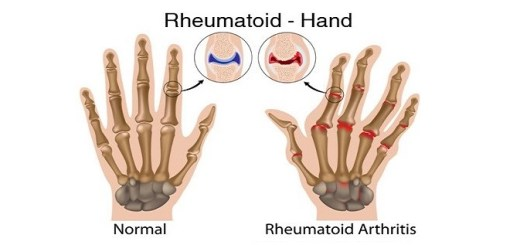 Take a look at how Omega 3 fatty acids can keep rheumatoid arthritis at bay!