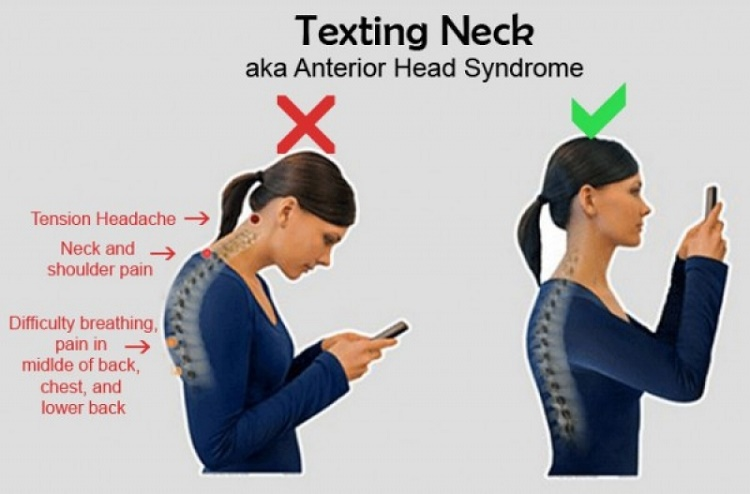 """The research on this """"Text-neck"""""""