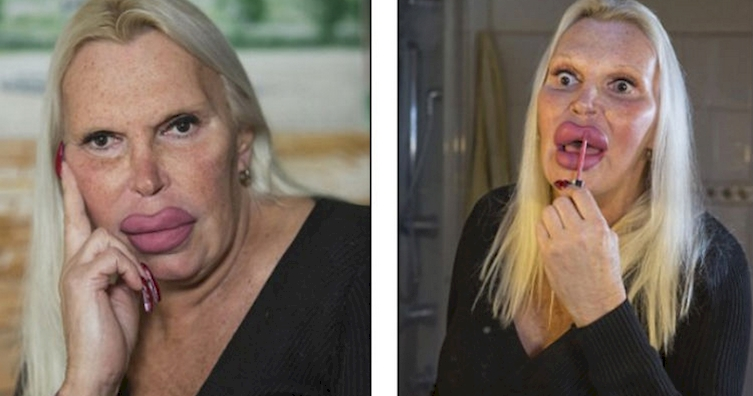 The woman who spent thousands of dollars on plastic surgery!