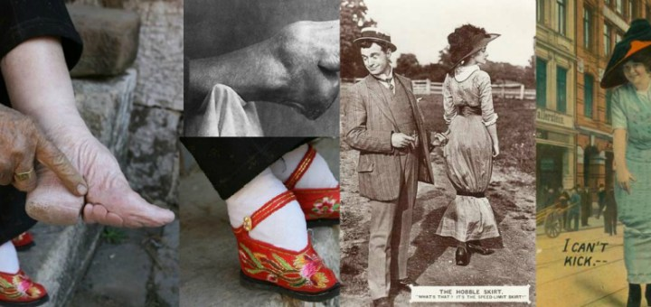 These 8 bizarre fashion trends from the past are proof that fashion had, has, and always will have a weird bias!