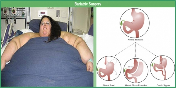Thinking of getting a bariatric surgery for weight loss? Read on if you should go for it