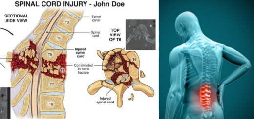 Ways in which spinal cord injuries may impact our health and how you can avoid such injuries