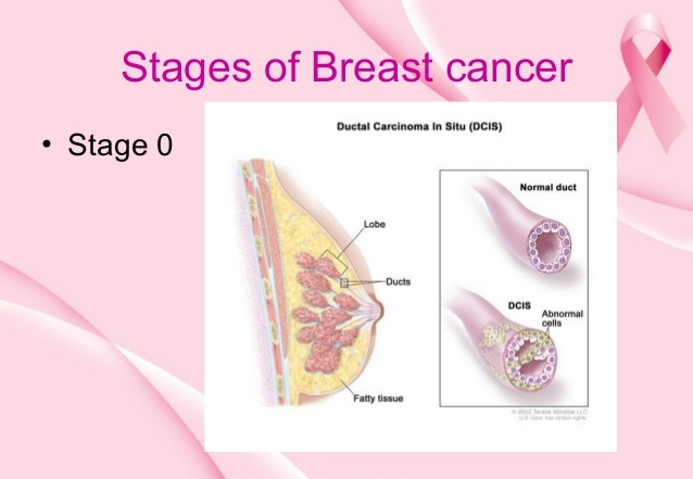 What is Stage 0 Breast Cancer?