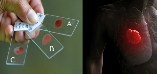 A single blood test can now help in detecting 5 major forms of cancer!
