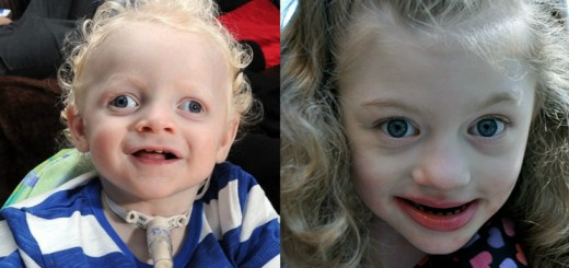 All that you need to know about the angelman syndrome