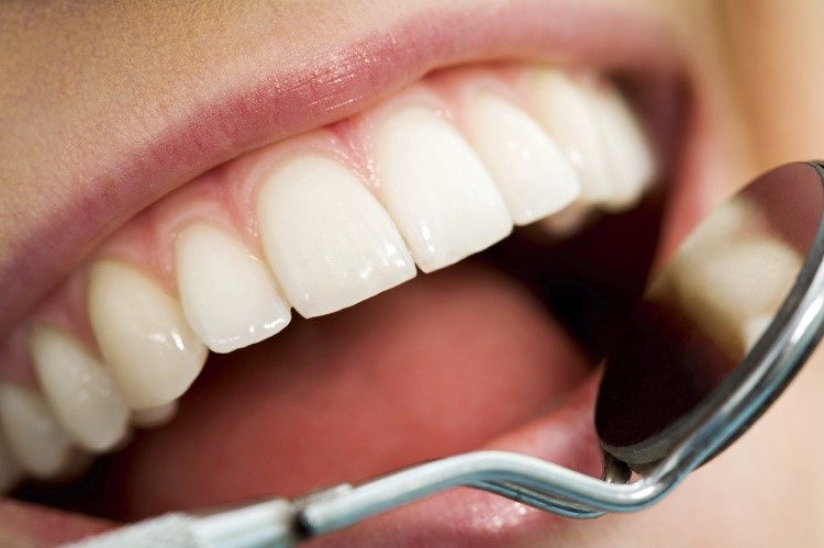 Caries Management System