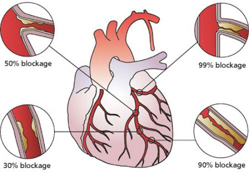 Dangers of artery blockage