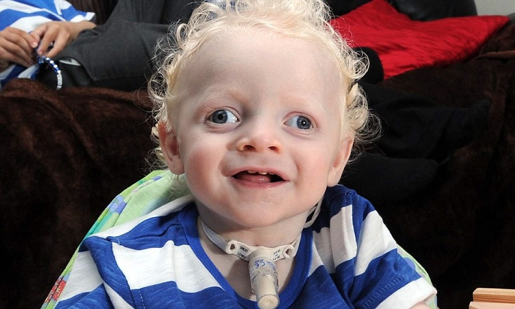 How does Angelman Syndrome Affect the Sufferer?